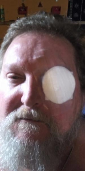 Hit in the eye AGAIN !-20200508_092320.jpg